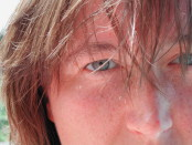 Occhi sani