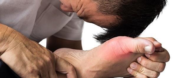 dolor planta pies acido urico recetas caseras contra la gota medicamentos para acido urico elevado